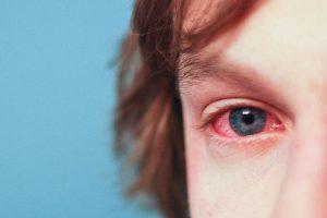 Ojos rojos, conjuntivitis