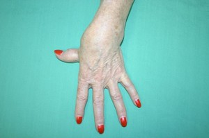 Artritis degenarativa