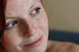 La cosmética-para bielorrusa de las manchas de pigmento
