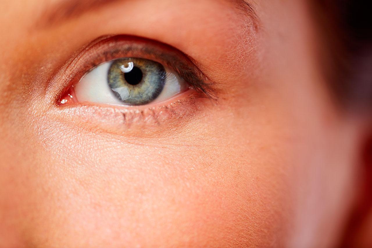 Ojeras: Qué Es, Síntomas, Causas y Tratamiento