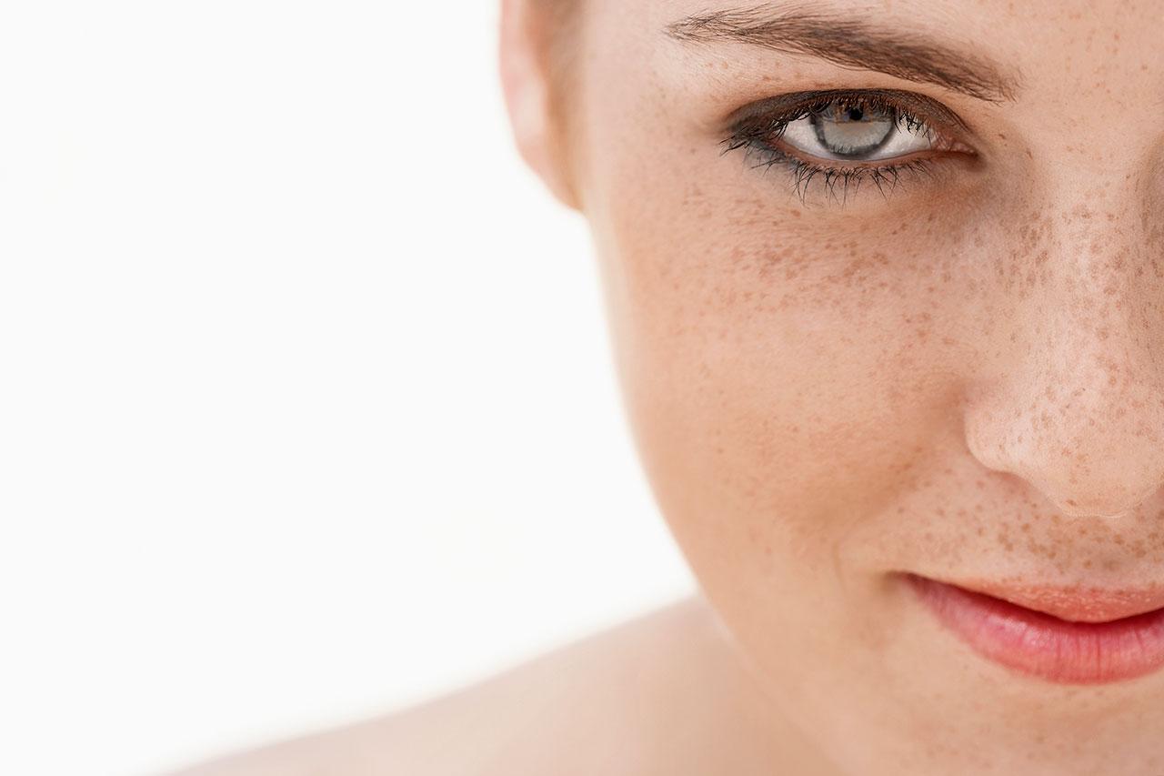 La medicina contra las manchas de pigmento sobre la persona