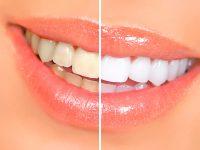 dientes-blancos-amarillos-sonrisa