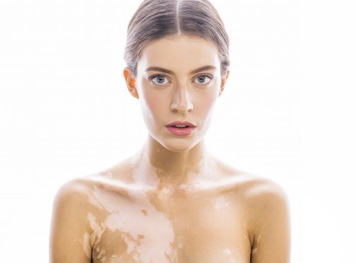 vitiligo-piel