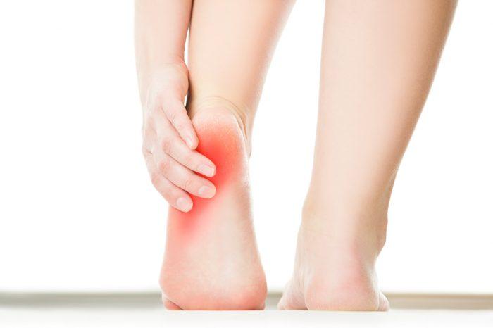 dolor-pies-talon-fascitis-plantar