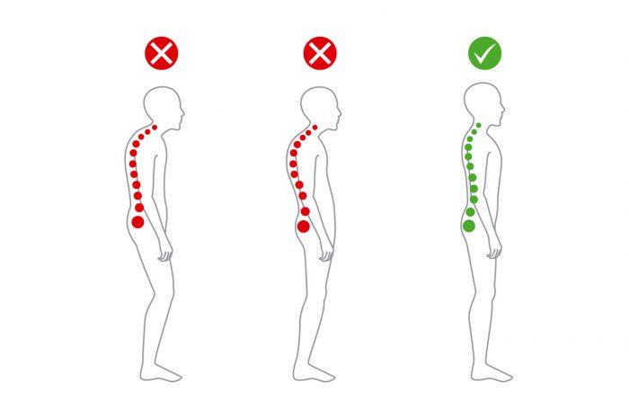cuello-cervicales-postura-espalda-dolor