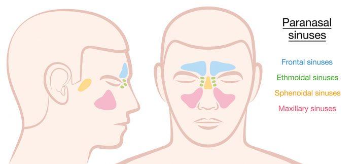 remedios-sinusitis-6