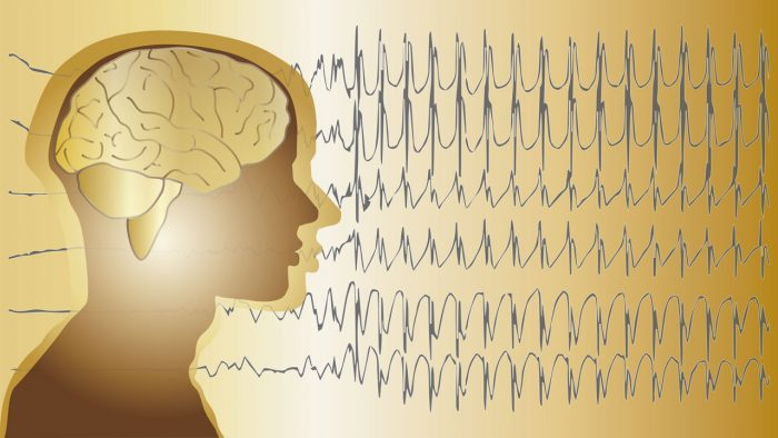 epilepsia-grafico