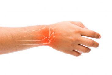 Combate la Artritis con Estos 15 Remedios Naturales