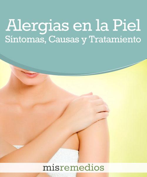 Alergias en la Piel
