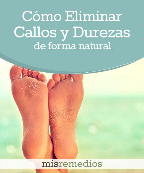 Cómo Eliminar los Callos y Durezas de los Pies de una Forma Natural