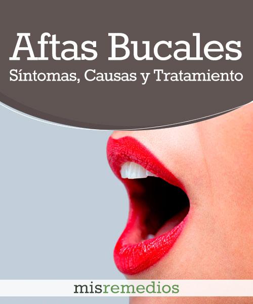 Aftas Bucales